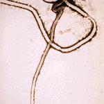 Ebola-Virus in Orang-Utans gefunden