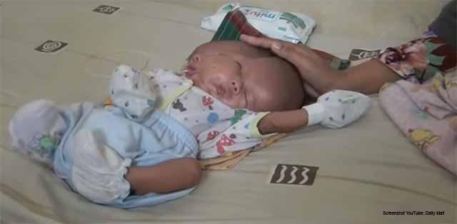 Siamesische Zwillinge in Indonesien geboren / Screenshot YouTube: Daily Mail
